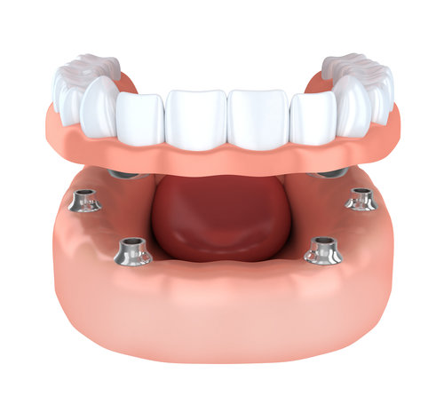 Tooth implantation done in 3d rendering