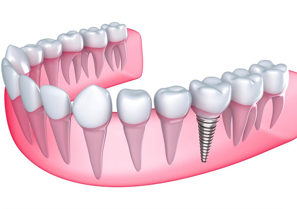 Dental Implants at Denver Dental Arts in Denver NC Area