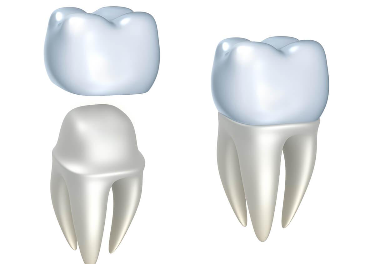 Porcelain Crowns at Denver Dental Arts in Denver NC Area